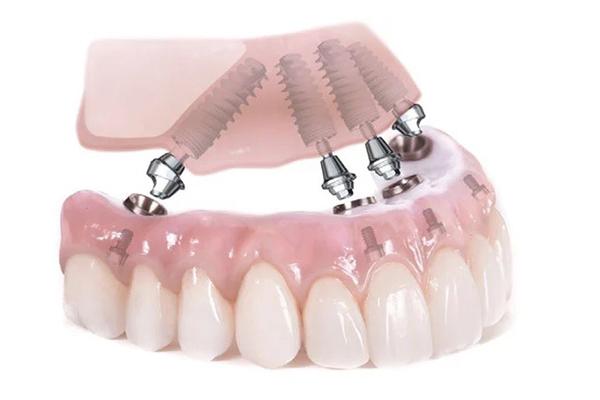 Зубы за 1 день по технологии all‐on‐4